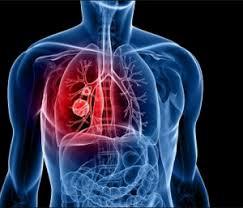 Fakta Penyakit Paru Paru Basah