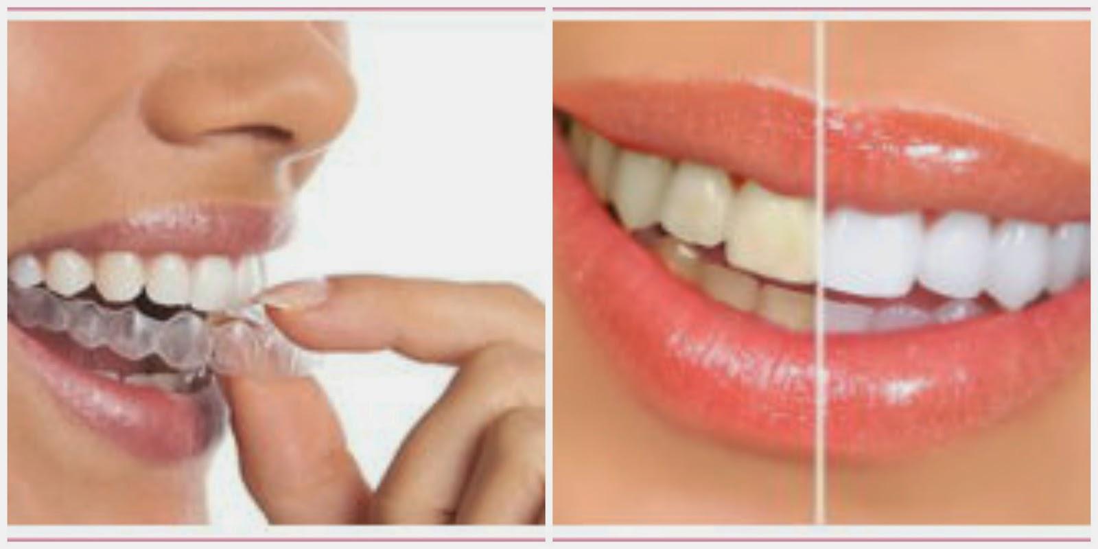 noiva-cuidados-beleza-sorriso-clareamento-aparelho-imperceptível-1