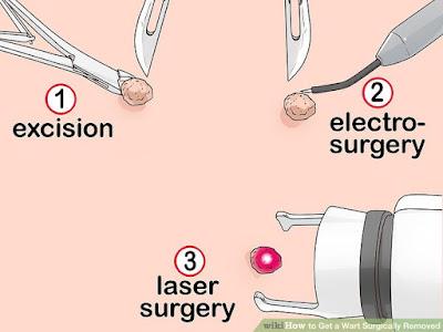Perawatan Setelah Operasi Kutil Kelamin