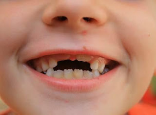 ¿Qué es la enfermedad periodontal?. Dentista en Zaragoza.