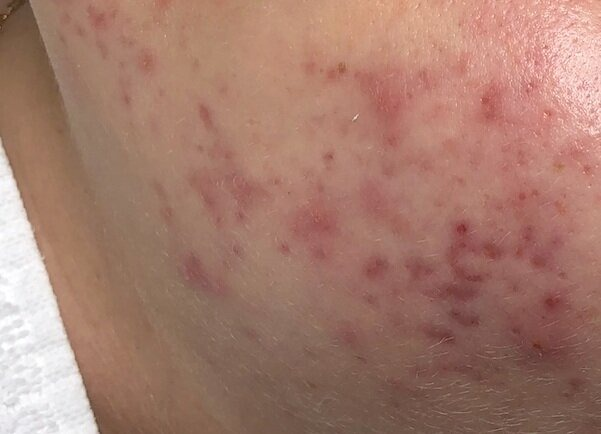 Những đốm đỏ và nâu do mụn để lại trên da