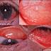Definisi Penyebab Dan Pengobatan serta Gejala Klinis Konjungtivitis Viral Menurut Ilmu Kedokteran