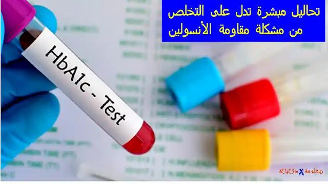5 تحاليل تدل على التخلص من مشكلة مقاومة الأنسولين