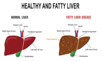 Stop eating it now, these foods spoil your liver