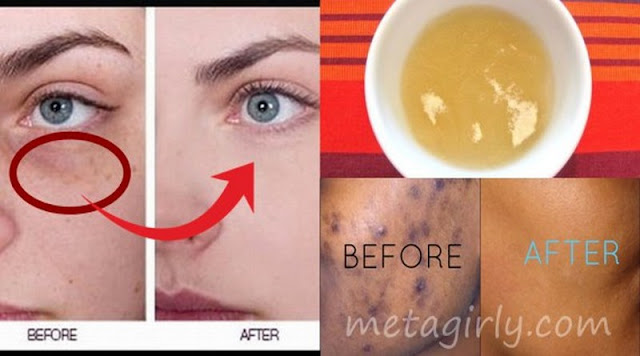 Get Rid Of Black Spots On Face Just In 15 Minutes Video