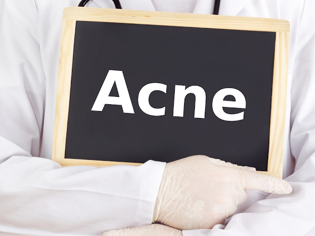 Acne Knowledge