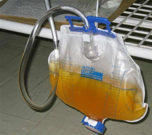 poche urinaire sondage vésical technique infirmier