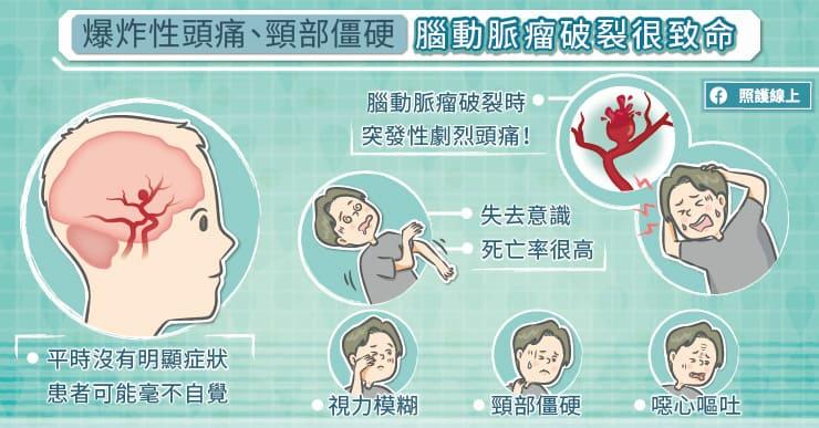 爆炸性頭痛、頸部僵硬,腦動脈瘤破裂極為致命!