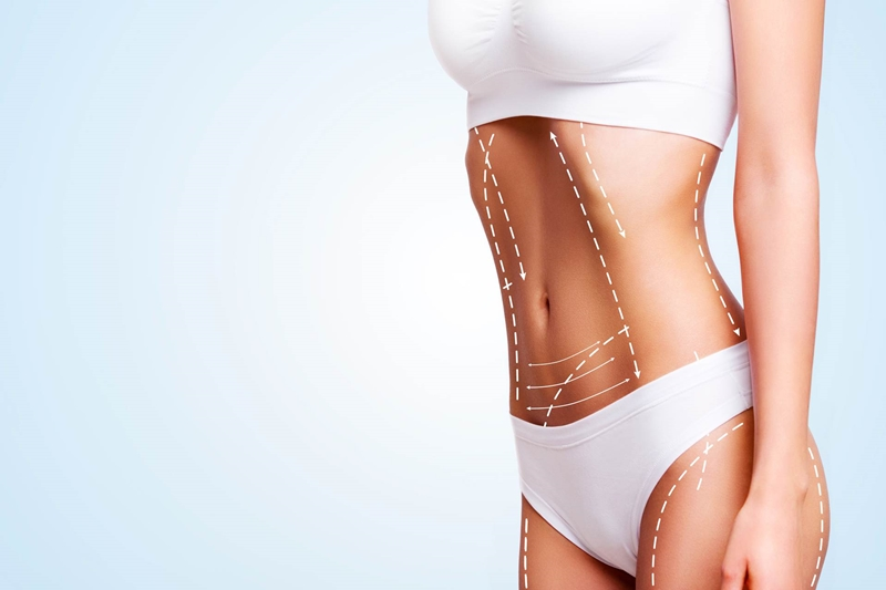 En Kolay Bölgesel İncelme Yöntemi: Lazer Liposuction
