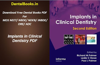 Implants in Clinical Dentistry 2nd Edition PDF