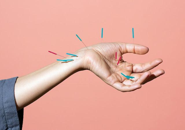 Akupunktur Can Acıtırmı
