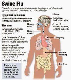 Swine Flu Virus Fever H1N1