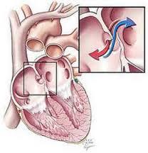 Cara Alami Menyembuhkan Klep Jantung Bocor