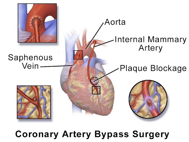 插圖描繪冠狀動脈搭橋手術(雙旁路)