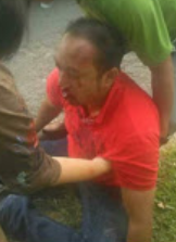 Anggota DPRD Tanjungbalai Arjun yang mengalami kecelakaan lalulintas di jalan tol.