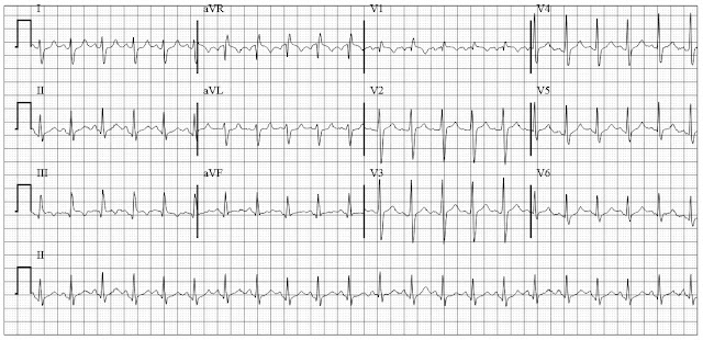 ECG of Right heart strain with s1q3t3 pattern