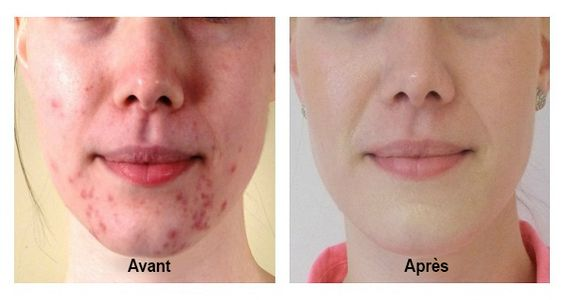 remedii dermatita atopica
