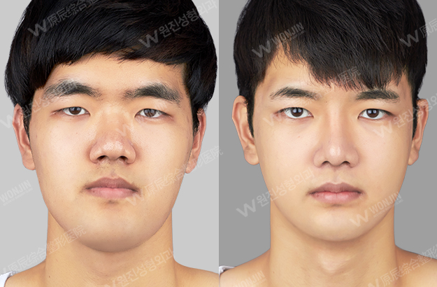 [Before and After Photos] Korean Plastic Surgery for Men ...