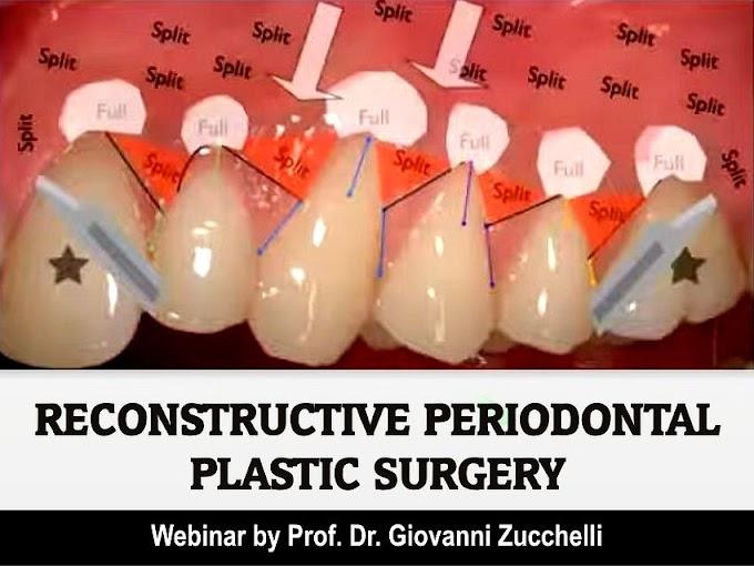 WEBINAR: Reconstructive Periodontal Plastic Surgery in the esthetic zone - Prof. Dr. Giovanni Zucchelli