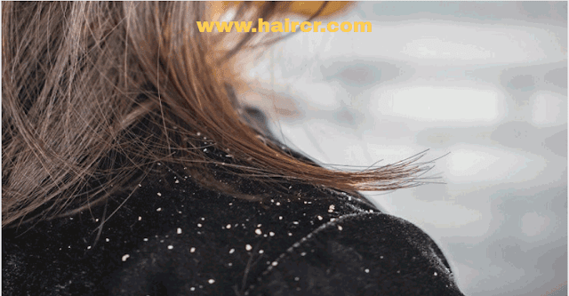 Treatment Of Bad Dandruff In Hair