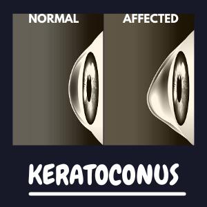 Keratoconus : Definition , Symptoms ,Causes & Treatment