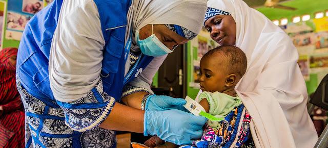Un bebé de siete meses recibe tratamienot para la desnutrición en un centro de salud del estado de Yobe, en Nigeria.© PMA/Arete/Damilola Onafuwa