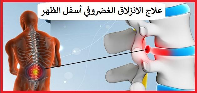 علاج الانزلاق الغضروفي في اسفل الظهر