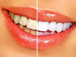 natural teeth-whitening tips