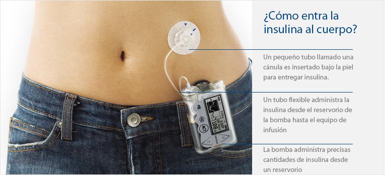 Microinfusora Insulina