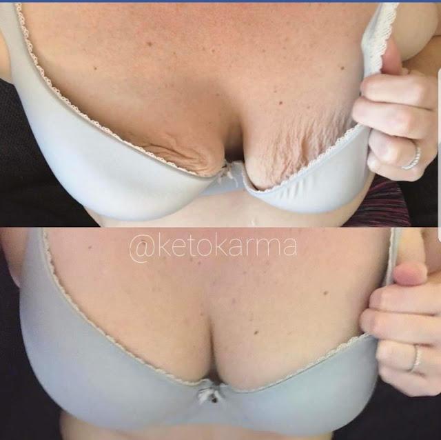 5 conseils indispensables pour pour ne pas souffrir des vergetures sur les seins