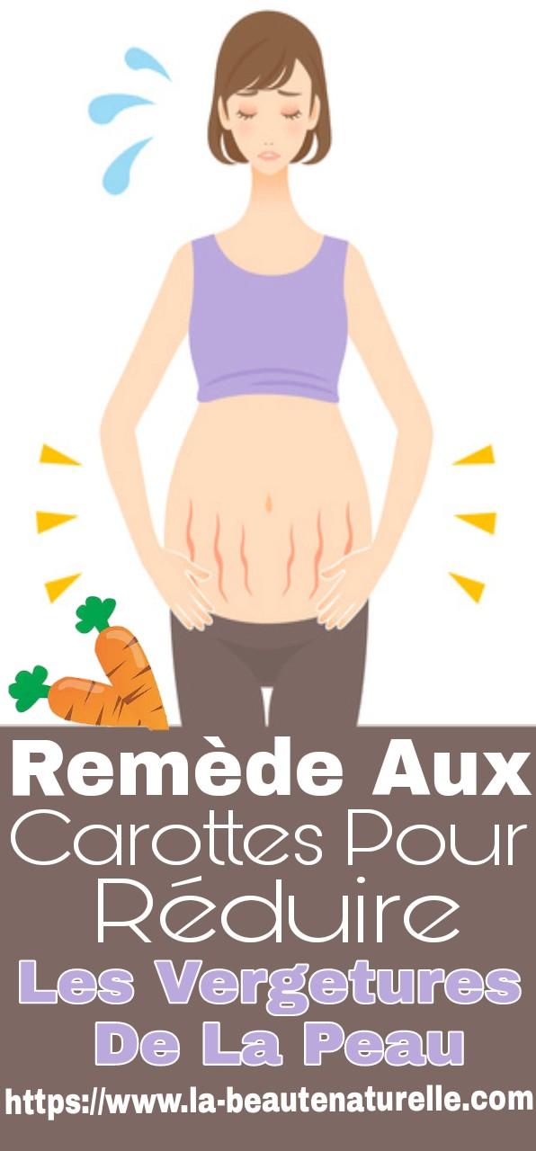 Remède aux carottes pour réduire les vergetures de la peau