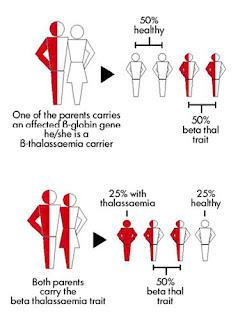 Thalassemia/Talasemia: Gejala Dan Penanganannya