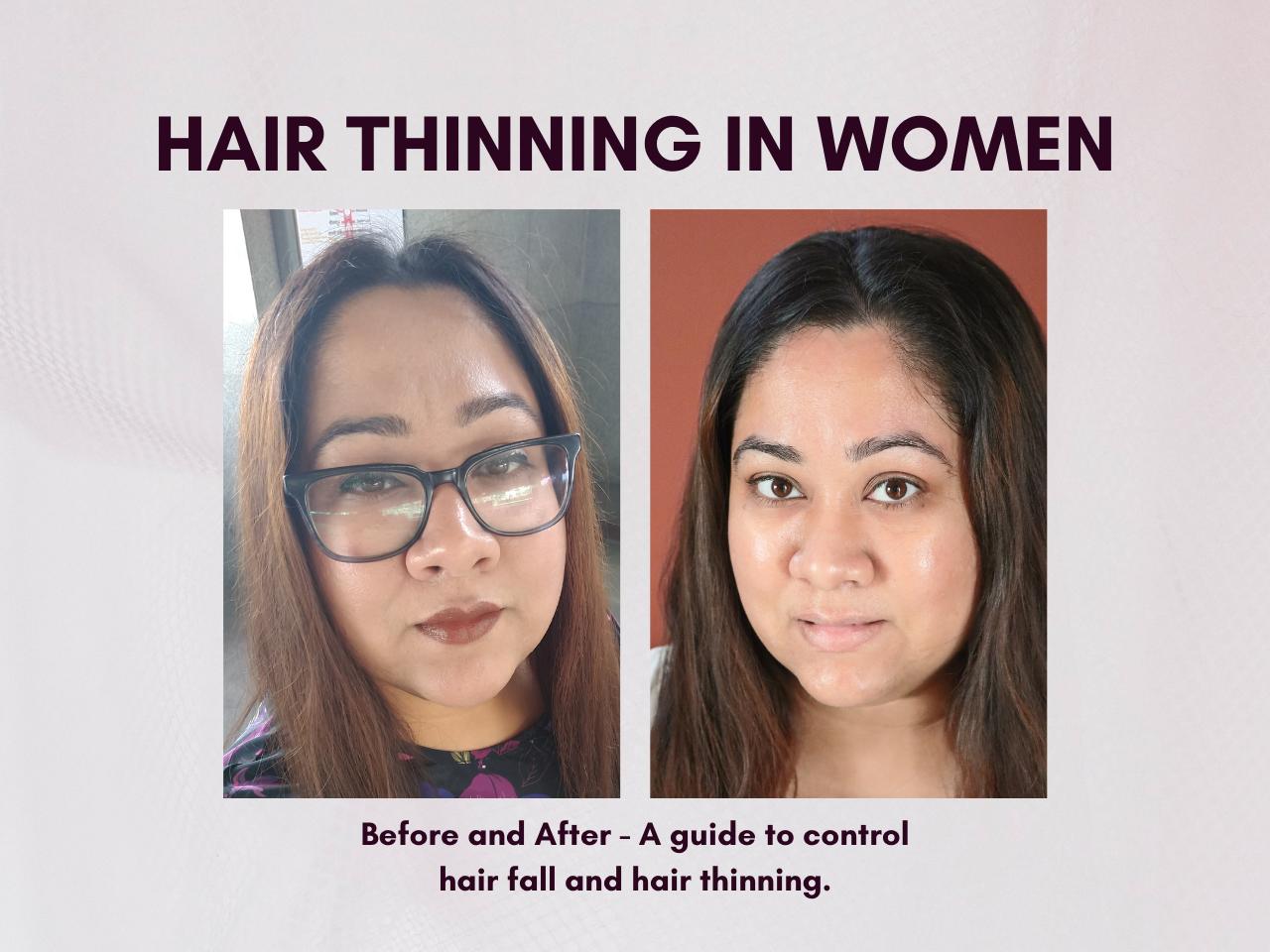 Hair Thinning in Women - Juicy Chemistry