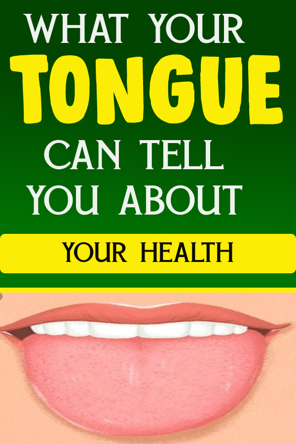 WHAT YOUR TONGUE CAN TELL YOU ABOUT YOUR