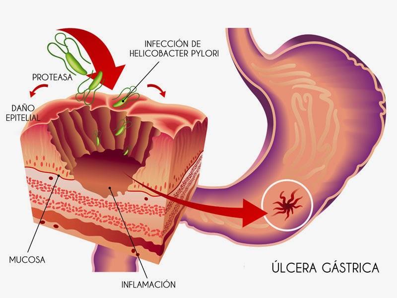 Dolor de Estómago: Gastritis y Ulceras