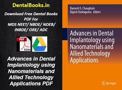 Advances in Dental Implantology using Nanomaterials and Allied Technology Applications PDF