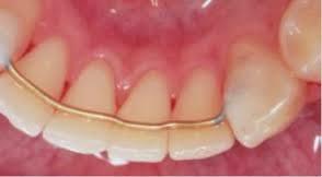 fcb31f064 Contenção fixa - o fio dental deve ser usado com auxílio do passa fio