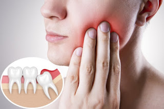 دواء مسكن ألم الأسنان
