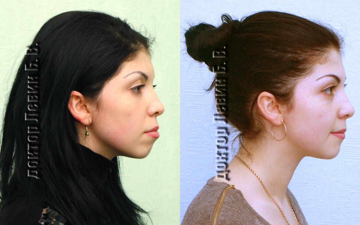 Два фото лица в профиль. До лечения и после лечения. Демонстрирует возможности брекет систем в коррекции черт лица.
