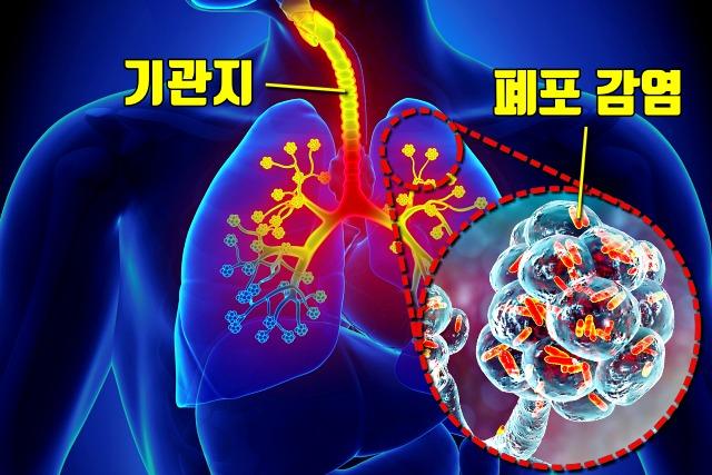 에어컨 창문, 레지오넬라 폐렴 증상, 냉방병, 건강, 팁주마 매일꿀정보