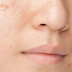 REMOVES WARTS GENITAL AND FACIAL, MOLES, FIBROMAS, PIMPLES AND THIS AGE SPOTS