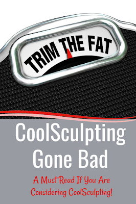 CoolSculpting Gone Bad By top Beauty Blogger Barbies Beauty Bits