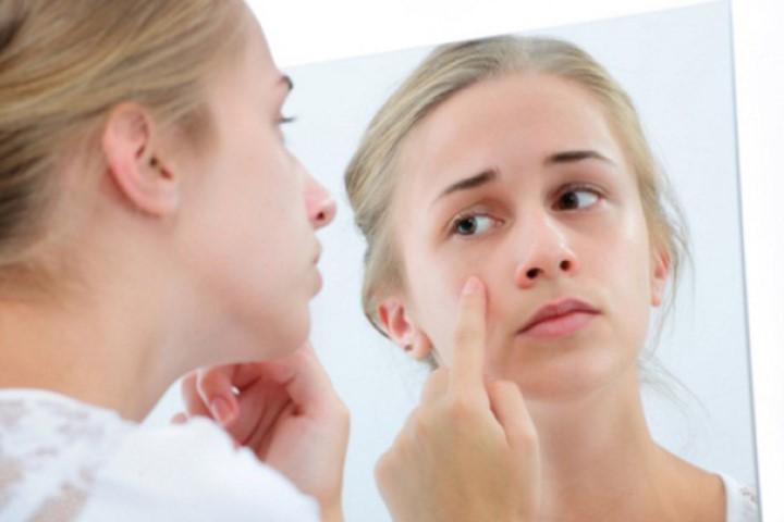 Bị nám tàn nhang nên ăn gì, uống gì giúp trắng tự nhiên cho làn da