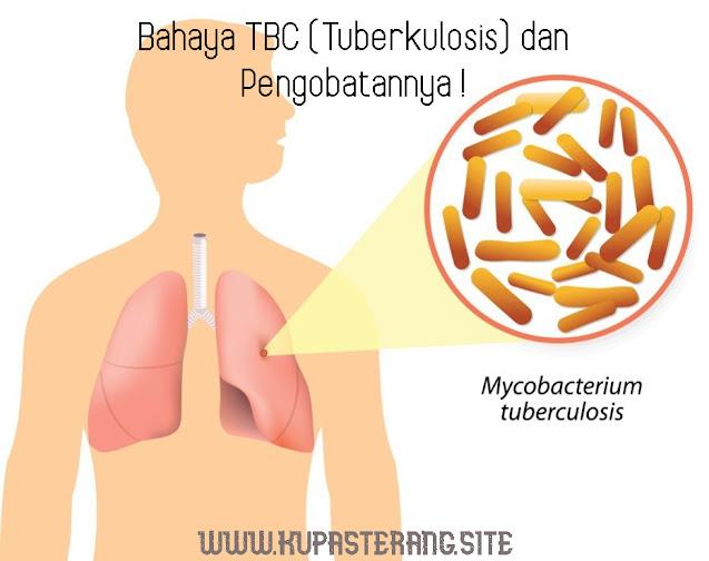 Bahaya Penyakit TBC (Tuberculosis) yang Jarang Orang Tahu dan Cara Pengobatan yang Tepat