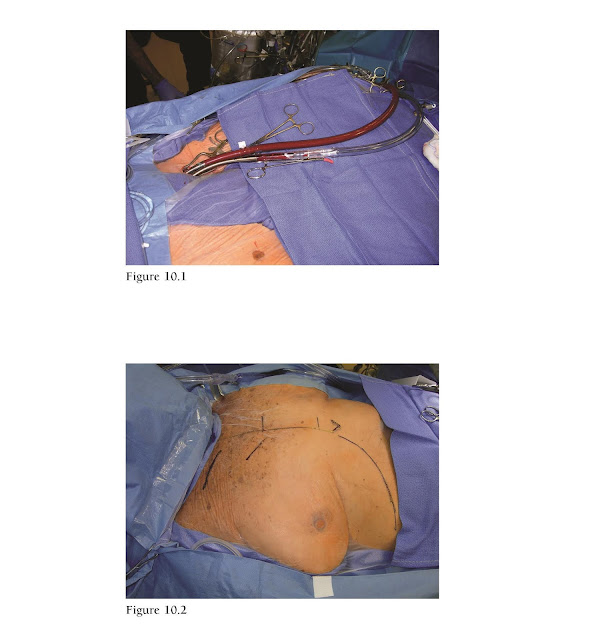 Femoral arterial and venous cannulation. External landmarks for right mini thoracotomy incision.