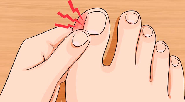 Step by Step to Treat Ingrown Nails