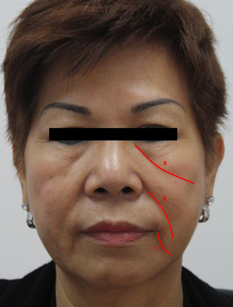 Herpes From Eyebrow Threading