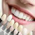 Why You Must Go For The Colored Tooth Fillings