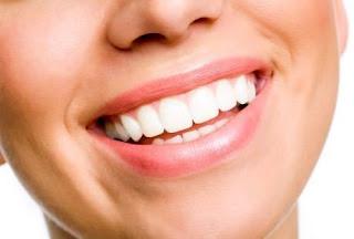 cara murah sederhana gigi putih