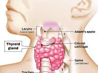 Papillary Thyroid Cancer Symptoms